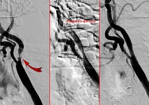 Этапы стентирования сонной артерии