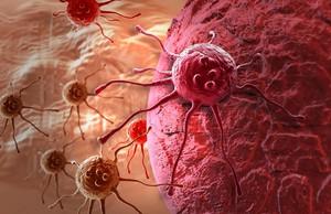 Сибирские ученые разработали новый способ диагностики рака и борьбы с ним